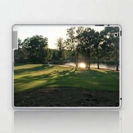 Shining Through the Trees Laptop & iPad Skin