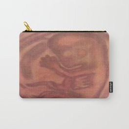 Fetus Carry-All Pouch