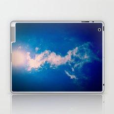 When the sun meets the cloud Laptop & iPad Skin