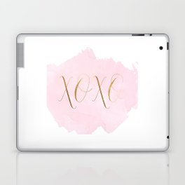 XOXO WALL DECOR, Xo Print,Xo Sign,Gossip Girl Quote,Gossip Girl Print,Girls Room Decor,Girly,Gift Fo Laptop & iPad Skin