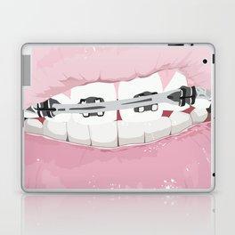 The New Grills Laptop & iPad Skin