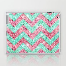 Chevron Pattern, pink & teal glitter photo print Laptop & iPad Skin