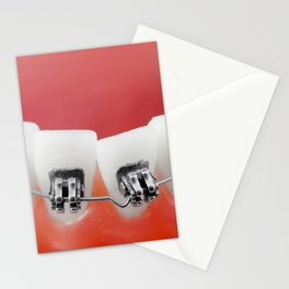 Dental braces Stationery Cards