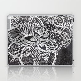 White hand drawn floral lace black chalkboard Laptop & iPad Skin