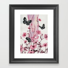 It Aches Framed Art Print