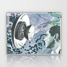 Dish Laptop & iPad Skin