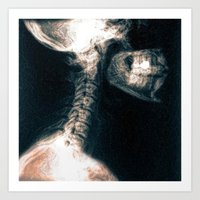 Pain in the Neck Art Print