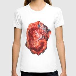 Kidney Vibes T-shirt