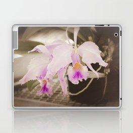 On Display Laptop & iPad Skin