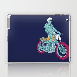 normal Laptop & iPad Skin