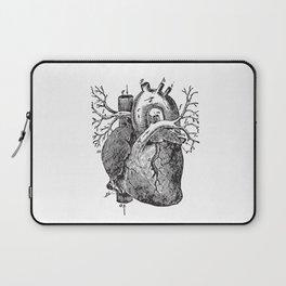 Human Heart Anatomy Detailed Illustration Laptop Sleeve