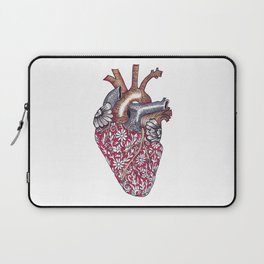 Have a heART Laptop Sleeve
