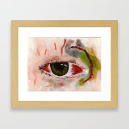 Busted and bruised Framed Art Print