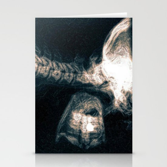 Pain in the Neck Stationery Cards