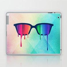 Love Wins! Rainbow - Spectrum (Pride) / Hipster Nerd Glasses Laptop & iPad Skin