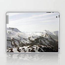 MIO Laptop & iPad Skin