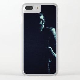 Xiz Clear iPhone Case