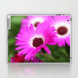 Livingston Daisy by Mandy Ramsey Laptop & iPad Skin