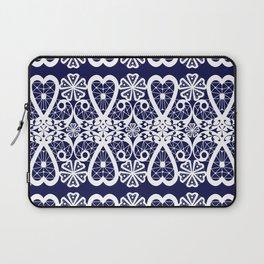 Retro . Lace blue white pattern . White lace on blue background . Laptop Sleeve