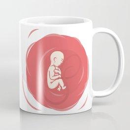 At the beginning 2 Coffee Mug