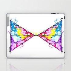 harry potter Laptop & iPad Skin