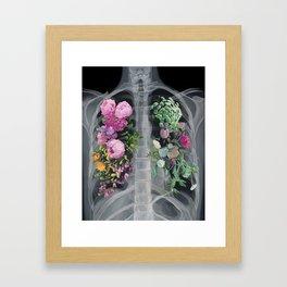 Pneumoflora X-Ray Framed Art Print