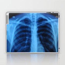 x ray medical radiography Laptop & iPad Skin