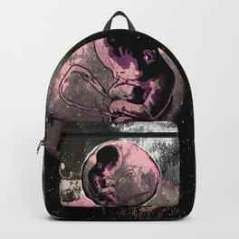 The FETUS Backpack