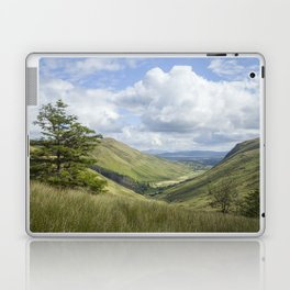 Glengesh Pass Laptop & iPad Skin