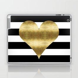 gold heart black and white stripe Laptop & iPad Skin