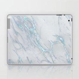 Marble Love Sea Blue Metallic Laptop & iPad Skin