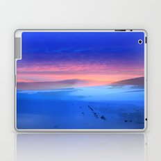 Blue is the colour Laptop & iPad Skin