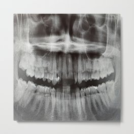 Smile!  Ha Ha Ha Metal Print