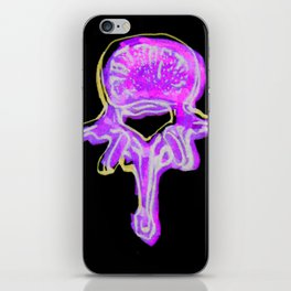 Lumbar Vertebrae 2 iPhone Skin