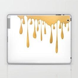 Tears of Midas Laptop & iPad Skin