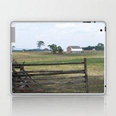 Infirmary at Gettysburg Laptop & iPad Skin