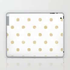 Gold Laptop & iPad Skin