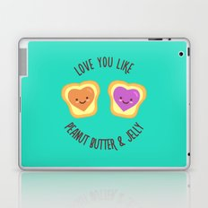 Sweet Lovers Laptop & iPad Skin
