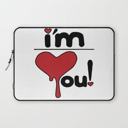 i'm over you! Laptop Sleeve