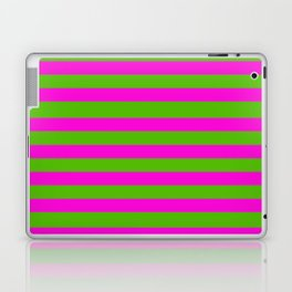 Hot Pink And Kelly Green Stripes Laptop & iPad Skin