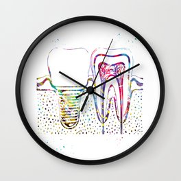Human teeth and dental implant Wall Clock