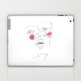 Shyness Laptop & iPad Skin