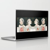 backpack Laptop & iPad Skins featuring ikizler (twins) by Amylin Loglisci