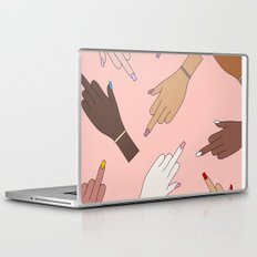 Worldwide Babes Laptop & iPad Skin