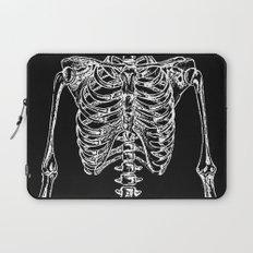 Skeleton Bones Laptop Sleeve