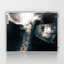 Pain in the Neck Laptop & iPad Skin