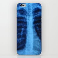 medical iPhone & iPod Skins featuring x ray medical radiography by tony tudor
