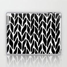 Hand Knitted Black on White Laptop & iPad Skin