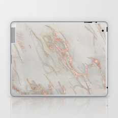 Marble - Rose Gold Marble Metallic Blush Pink Laptop & iPad Skin