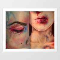 Bruises  Art Print